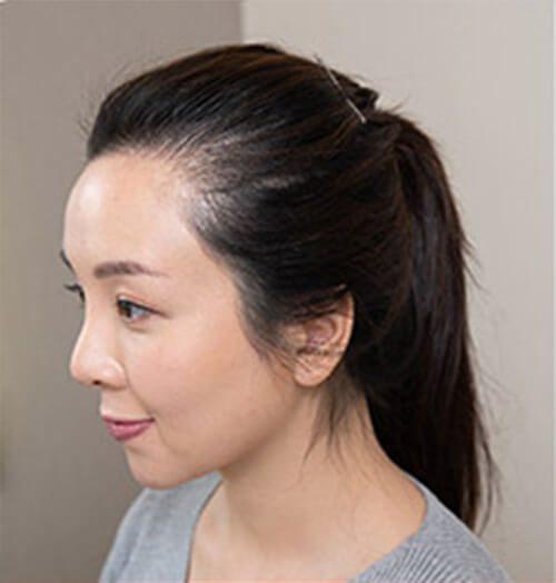 Svenson HairFix - Lady
