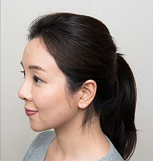 Svenson HairFix - Lady-after-2